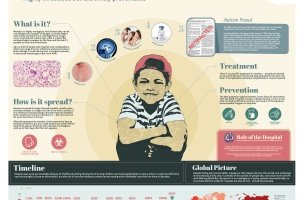 Bravery bandages and bedpans Infographic Measles