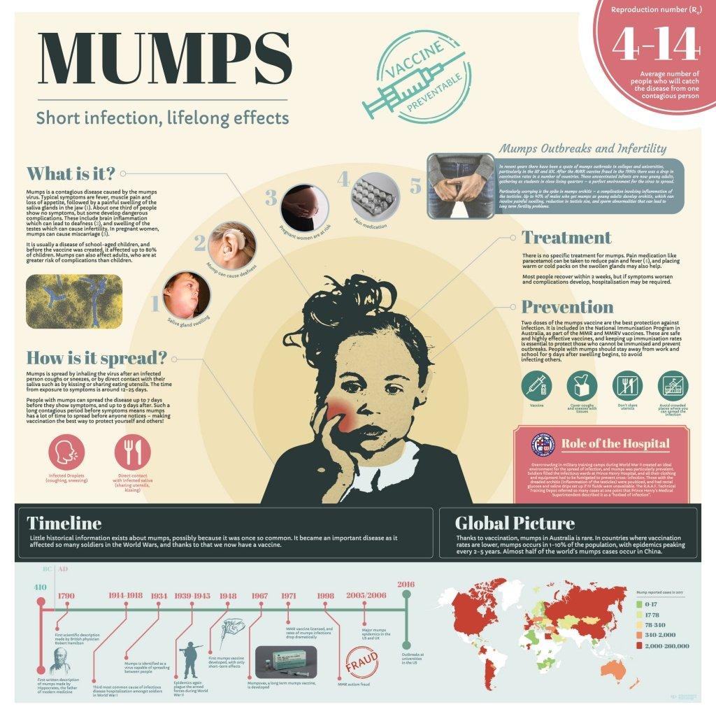 Infographic - Mumps